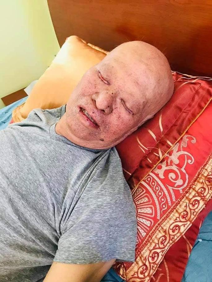HLV Lê Thụy Hải tiều tụy, gồng mình chiến đấu với bệnh tật