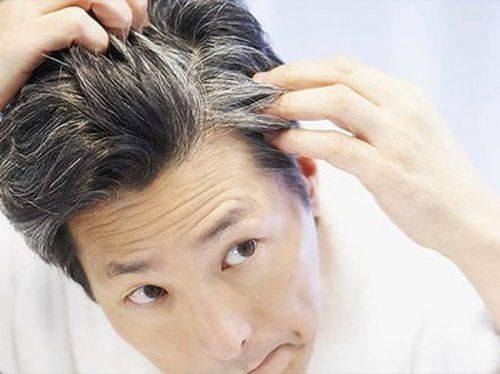 Mơ thấy đầu mình mọc đầy tóc bạc