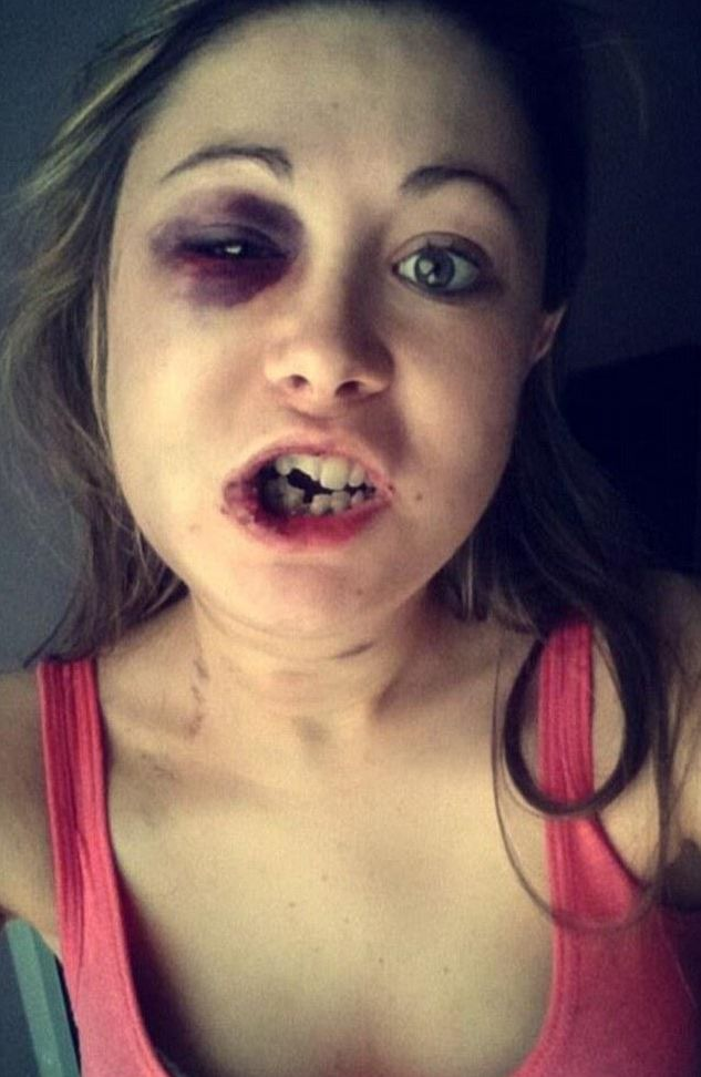 Mơ thấy cô gái bị đánh rụng răng